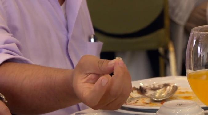"""Nosotros teníamos """"una uña"""" en la quiniela de cosas desagradables que iban a aparecer en los platos de esta semana, tristemente."""